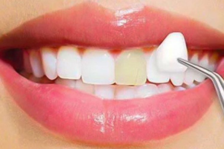 5 Problems That Designer Teeth Veneers Will Eliminate